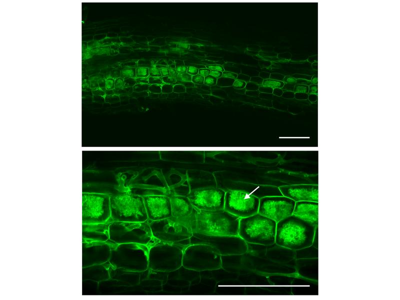 Der AM-Pilz (grün) erreicht die innere Wurzelrinde und bildet dort die namensgebenden Arbuskeln.