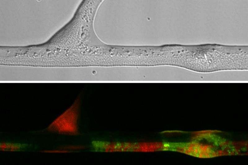 Durchlichtmikroskopische Aufnahme von Bakterien entlang einer Hyphe